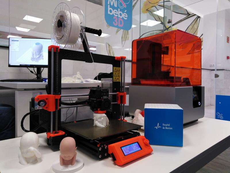 Una imagen de la impresora que reproduce la ecografía en tres dimensiones, facilitada por el hospital. EFE