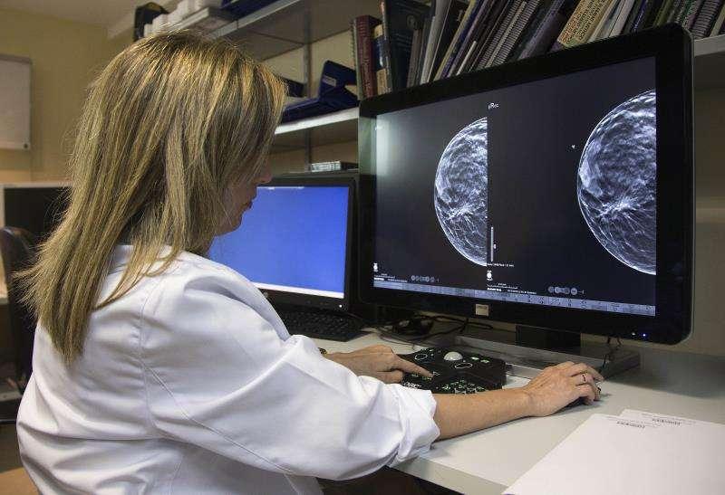 Una doctora revisa una mamografía. EFE/Archivo