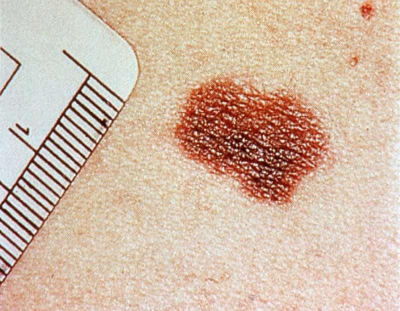 Imagen de un melanoma de la piel.