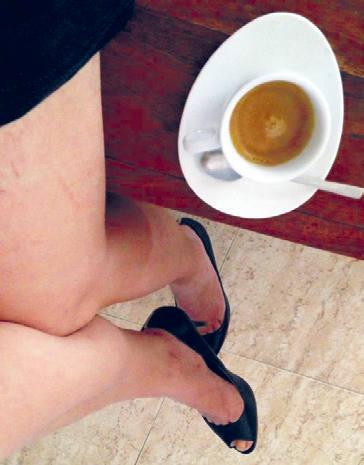 Laia, mostrant les seues cames. // EPDA.